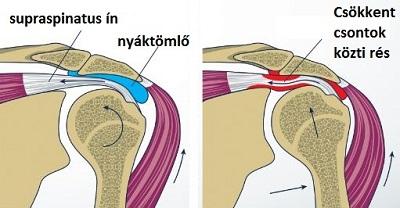 vállízület gyulladás kezelésére kenőcsök minden osteochondrozishoz