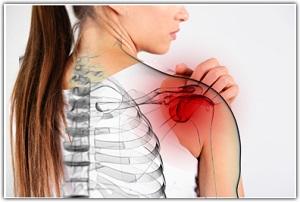 nyaki osteochondrozis kenőcs, kondroxid