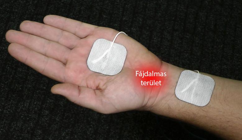 ízületek fáj télen fájdalom ízületi sérülés után