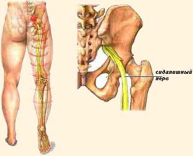 csípőízületek fájnak, ha séta a vállak térdízületei fájnak